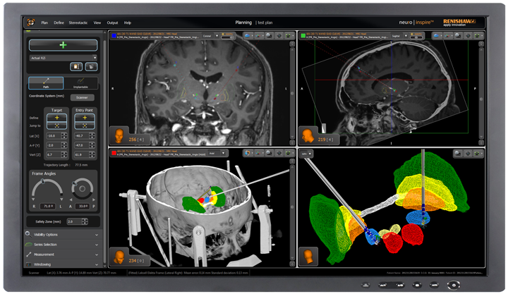 Renishaw's Neuroinspire surgical planning software
