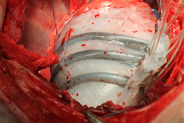 harvard soft robot for heart
